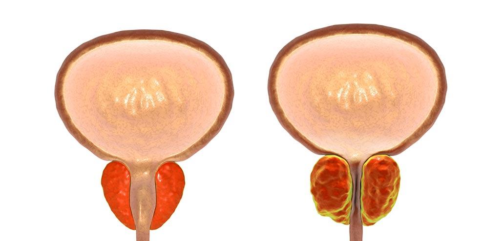 Iperplasia prostatica