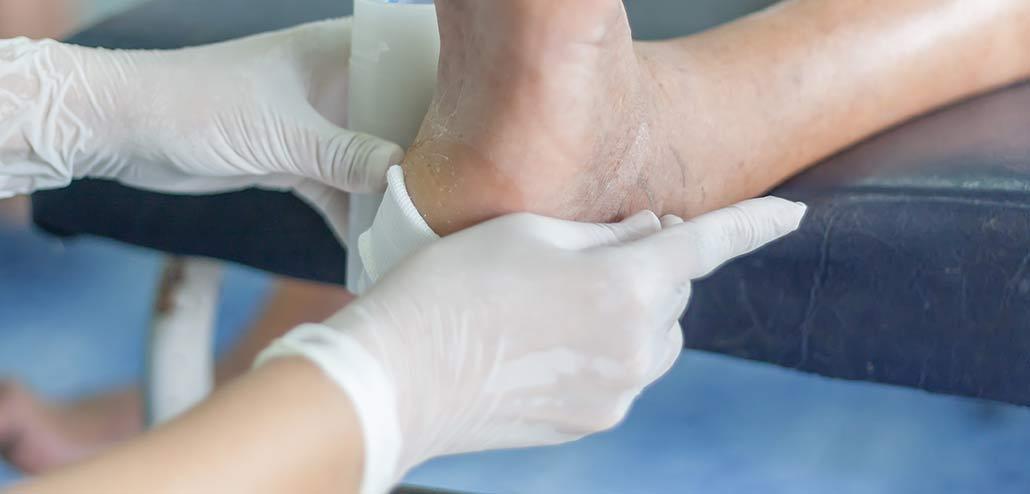 tipologie di ulcere cutanee croniche