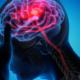 meningiomi e aneurisma cerebrale